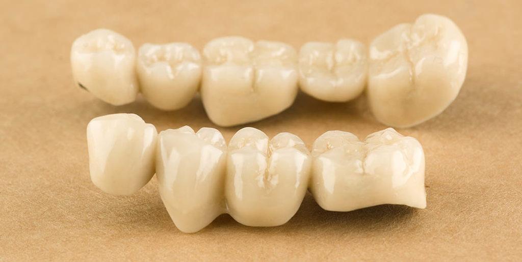 Prothèses dentaire conjointes