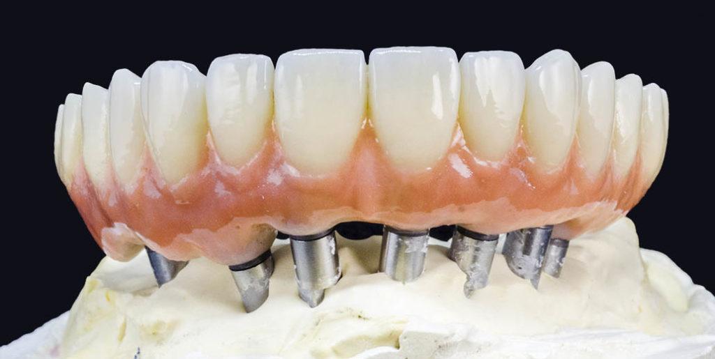 prothèses sur implants